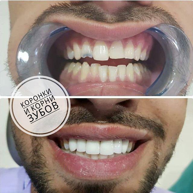Какие продукты вредны для зубов: топ-10 самых разрушающих