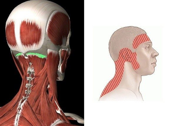 Боль в шейном отделе позвоночника болит затылок