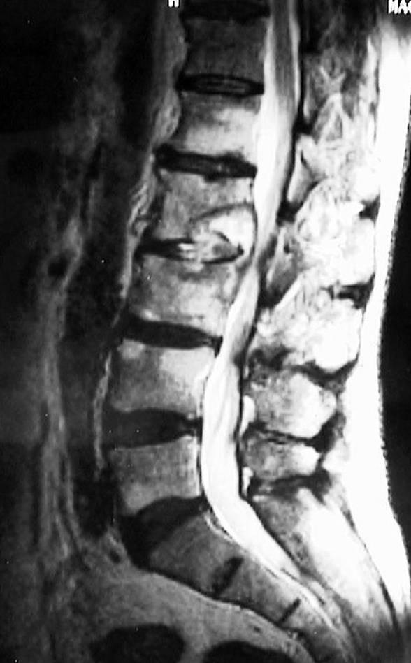 Туберкулезный спондилит: классификация, симптомы и лечение