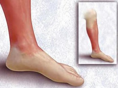 Рожистое воспаление ноги: симптомы, лечение в домашних условиях, фото