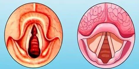 Ларингит - причины, симптомы и лечение
