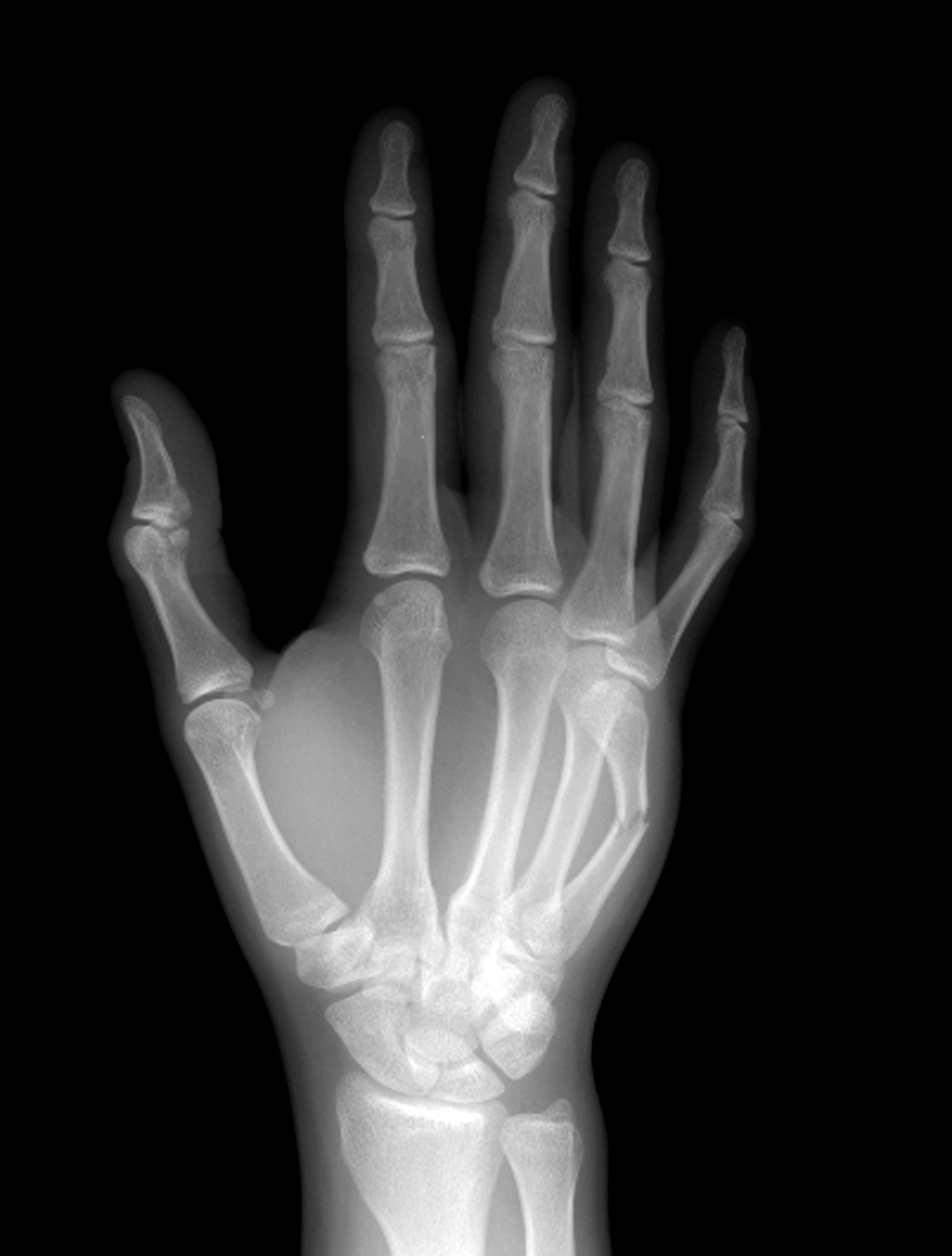Перелом лучевой кости руки: лечение, срок срастания и реабилитация