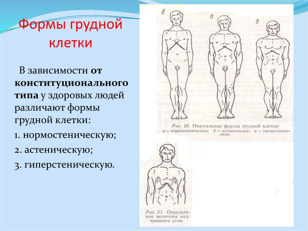 Воронкообразная грудная клетка - симптомы  и лечение