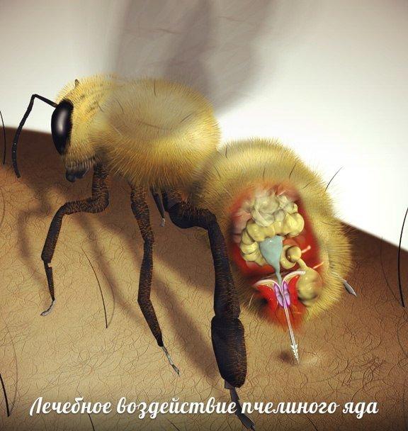 Польза и вред пчелиного яда на организм