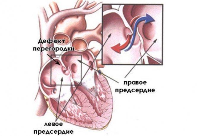 Открытое овальное окно в сердце: чем опасно, признаки, диагноз, лечение