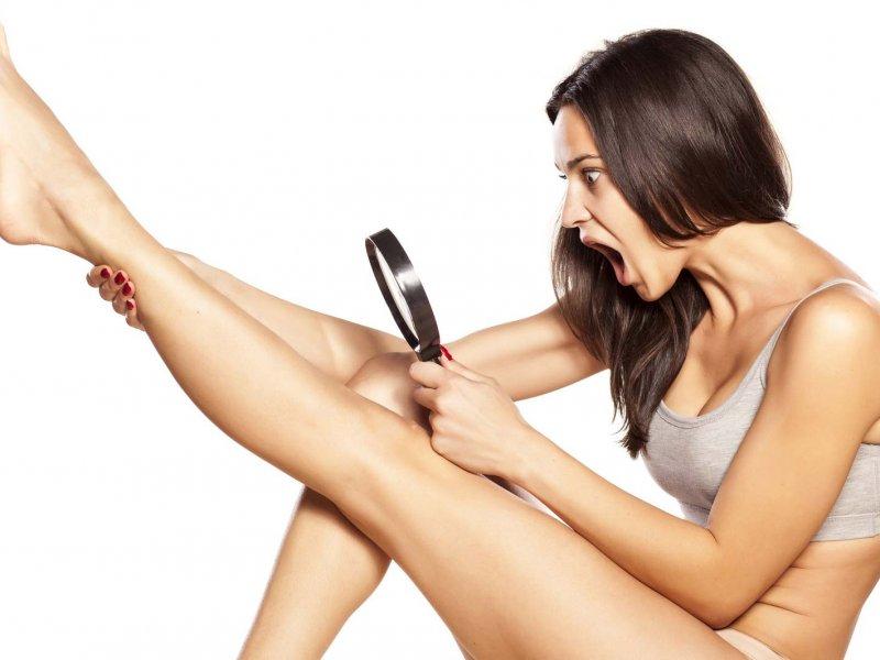 Вросшие волосы после эпиляции – как избавиться в зоне бикини, на ногах