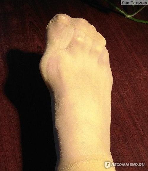 Описание и действенность различных ортопедических приспособлений для косточки на ноге