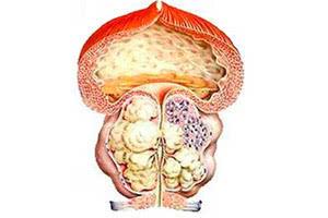 Характеристика аденомы предстательной железы 2 степени