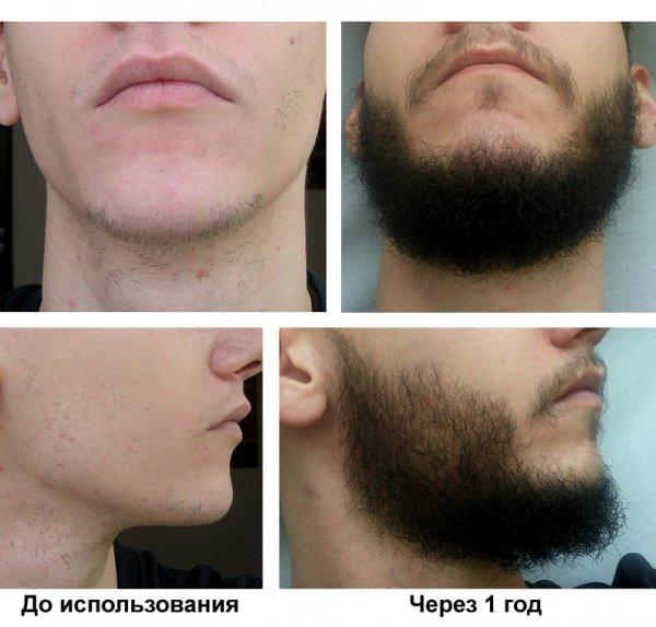 Миноксидил для роста волос: как применять средство, отзывы с фото до и после, цена