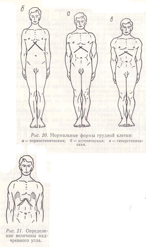 Деформация грудной клетки у ребенка: причины, лечение и разновидности