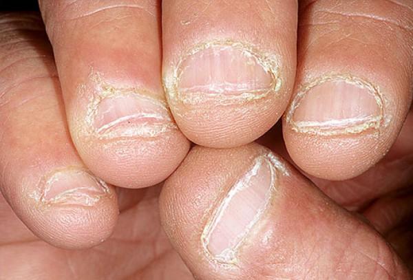 С какой стороны печень: все болезни отражаются на лице, по состоянию кожи на лице можно судить о нарушениях функций внутренних органов и желез   сухие губы признак чего | метки: подбородок, темно, бледность, симптом, заболевание