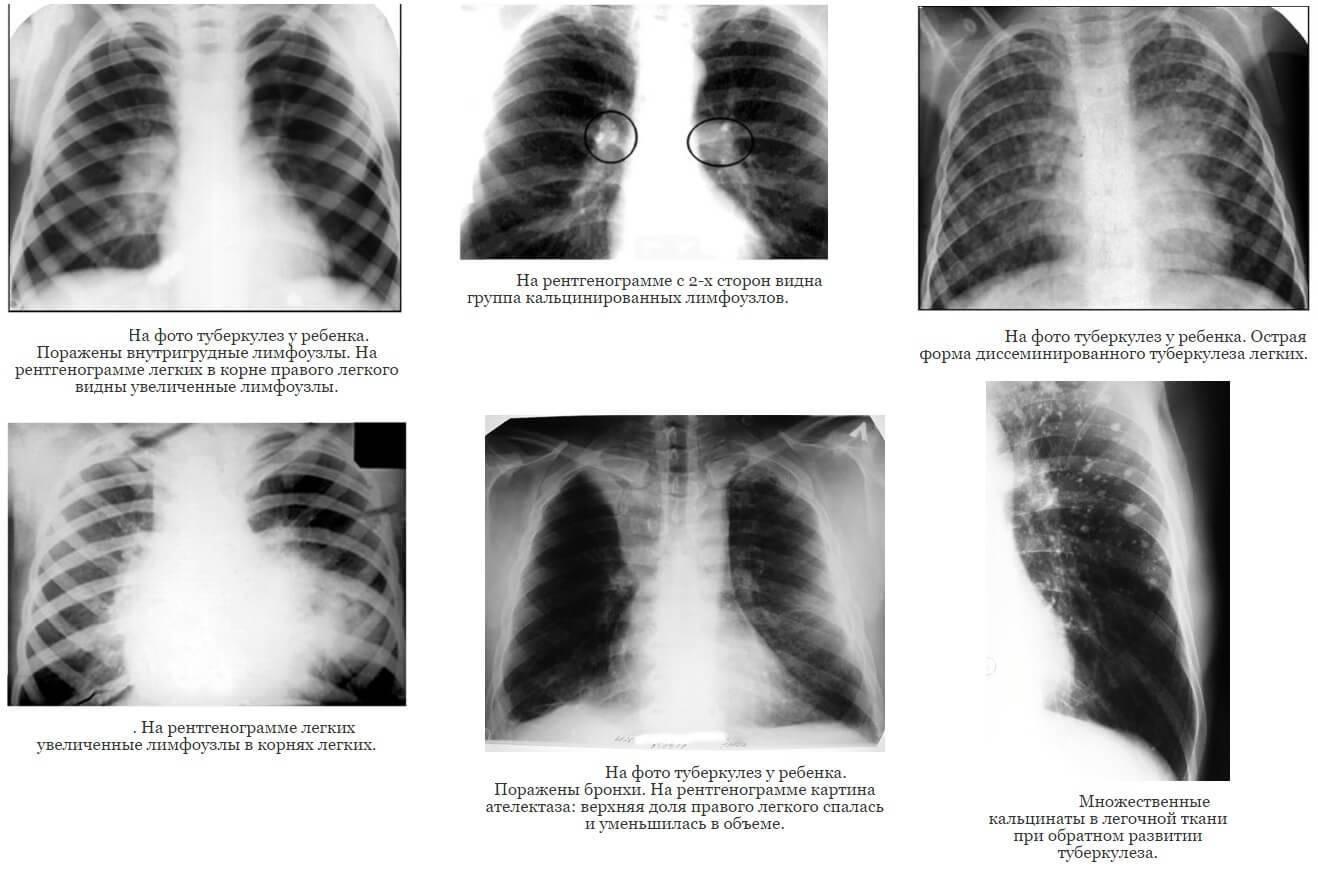 Первые признаки и симптомы туберкулеза у детей. диагностика и лечение. значение вакцинации
