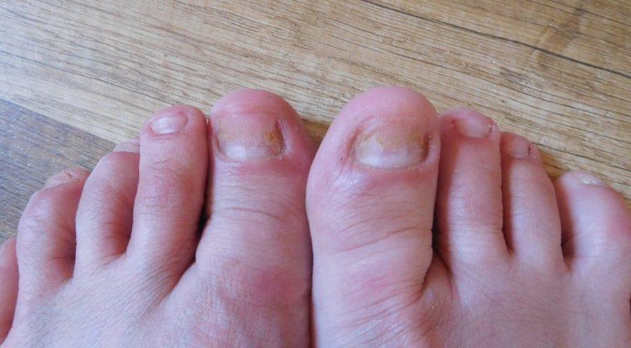 Микоспор от грибка ногтей