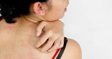 Аллергическая крапивница — причины, симптомы, диагностика и лечение — симптомы