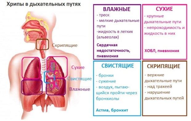 Где болит при воспалении легких?