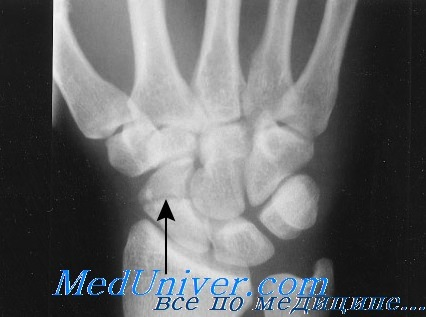 Переломы головки и шейки лучевой кости - описание болезни