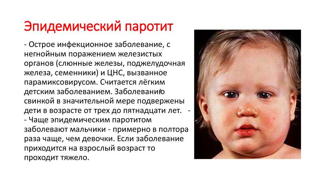Эпидемический паротит (свинка): вирус, симптомы у детей и взрослых, лечение. последствия заболевания у мальчиков. фото