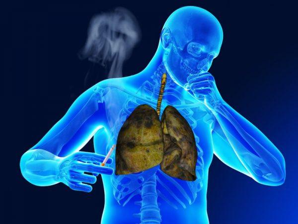 Можно ли вылечить бронхит без антибиотиков у взрослого