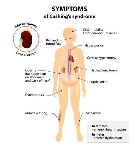 Гиперкортицизм симптомы лечение. гиперкортицизм – причины возникновения и методы лечения. центральная форма – болезнь иценко-кушинга
