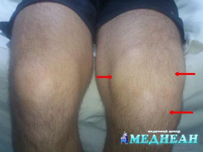Почему другие диеты не работают: как подобрать продукты, которые действительно лечат артрит коленного сустава