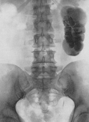 Туберкулез почек: симптомы, признаки и лечение