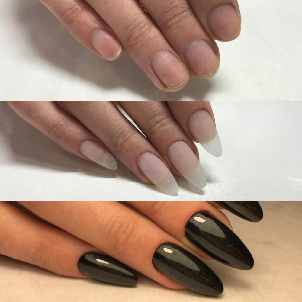 Как сделать ногти крепкими? что делать, если длинные ногти ломаются и расслаиваются? причины тонких, мягких и ломких ногтей на руках