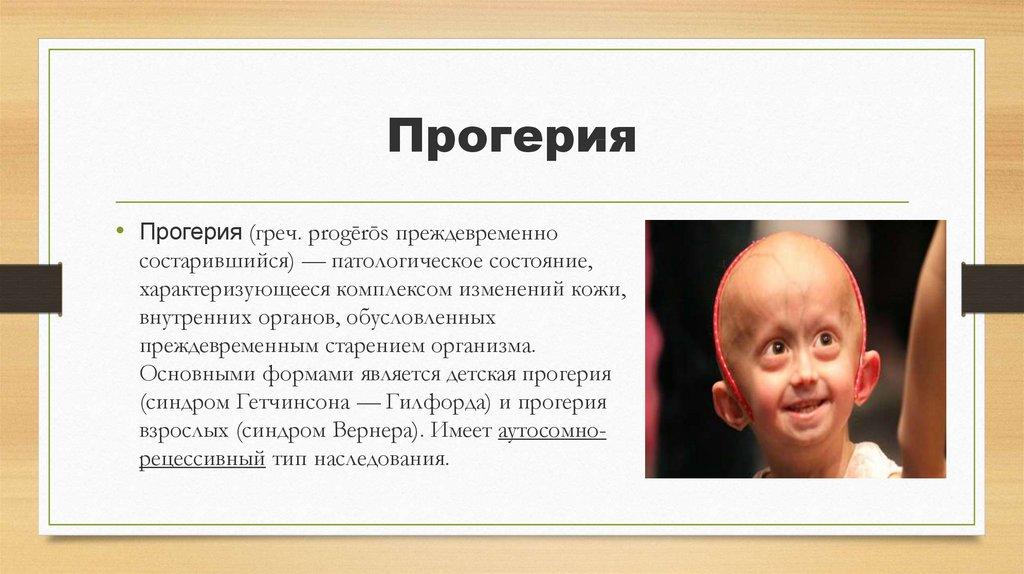 Синдром гетчинсона-гилфорда