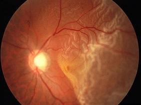 Почему происходит отслоение сетчатки глаза? операция по восстановлению зрения.