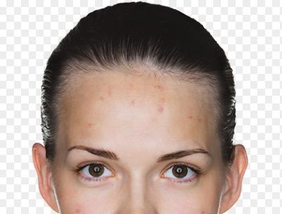 Внутренние прыщи на лице: причины и лечение