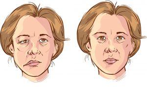 Неврит лицевого нерва при рассеянном склерозе