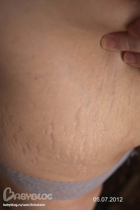 Топ кремов которые помогут избавиться от растяжек при беременности раз и навсегда!