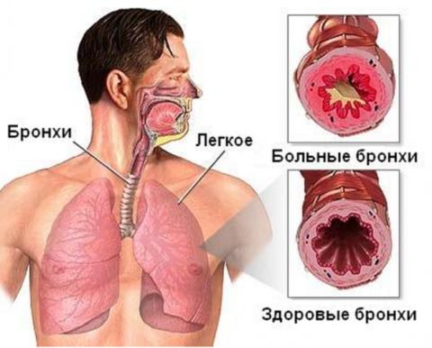 Бронхообструктивный синдром (бронхообструкция): причины, диагностика, лечение