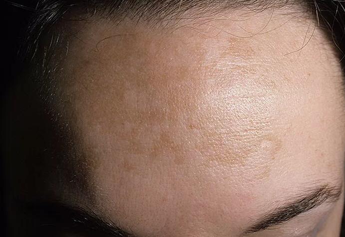 Витилиго — нарушение пигментации кожи