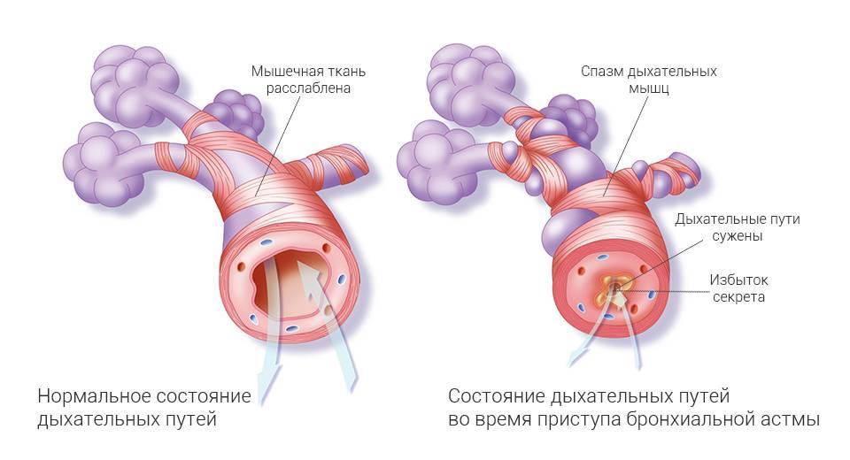 Бронхиальная астма: симптомы и лечение у взрослых в домашних условиях