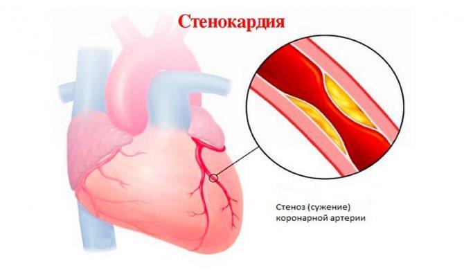 Первая помощь при сердечном приступе – что делать?