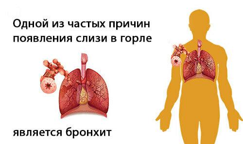 4 группы причин отхаркивания крови из горла