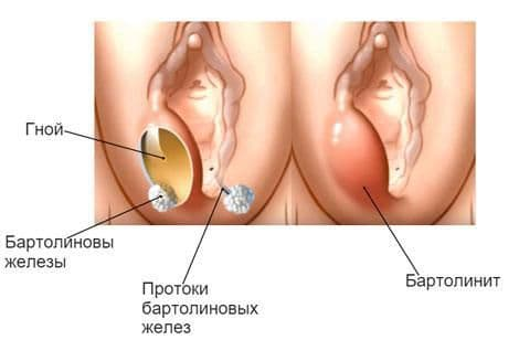 Бартолиновая железа – важные функции органа и самые частые заболевания