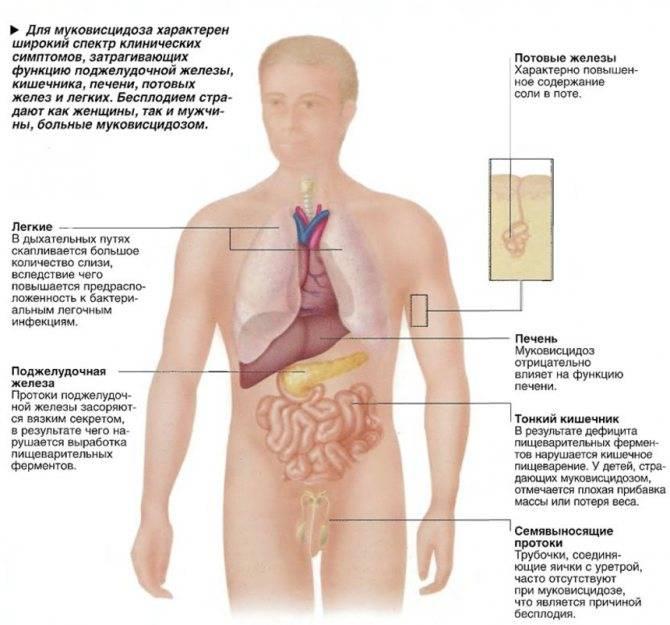 Корневая пневмония у взрослых – симптомы и лечение воспаления легких