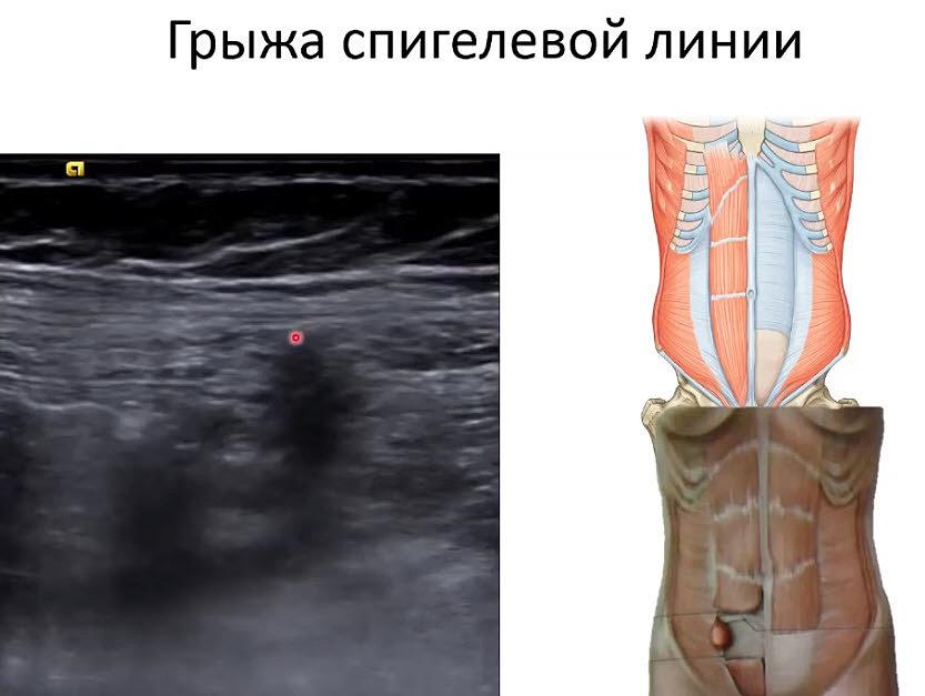 Пупочная грыжа - симптомы, лечение, удаление у взрослых, операция