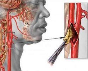 Симптомы и лечение окклюзии артерий нижних конечностей