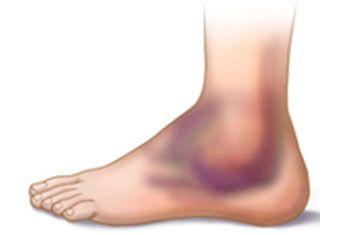 Как убрать гематому на ноге после ушиба или другой травмы?