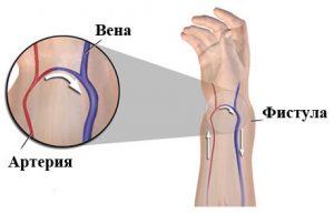 Причины появления артериовенозной фистулы и методы ее лечения