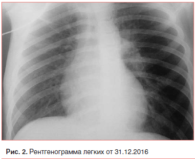 Симптомы и методы лечения прикорневой пневмонии у детей