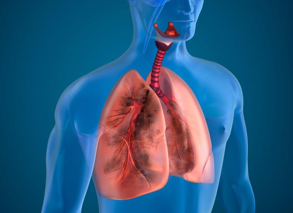 Пылевой бронхит: симптомы, причины и лечение