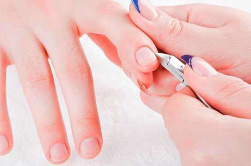 Как лечить заусенцы на пальцах: просто и понятно