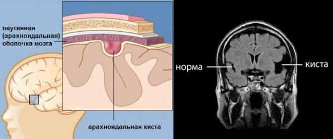 Арахноидальная киста задней черепной ямки: стоит ли бояться?