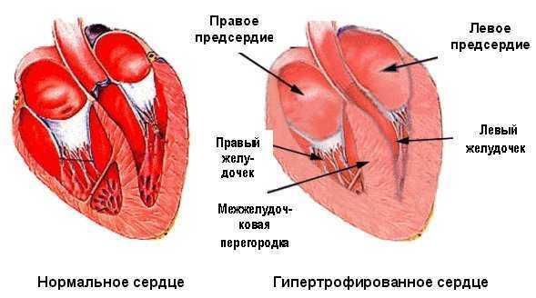 Гипертрофия правого желудочка — причины и лечение