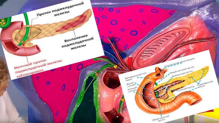 Заболевания поджелудочной железы