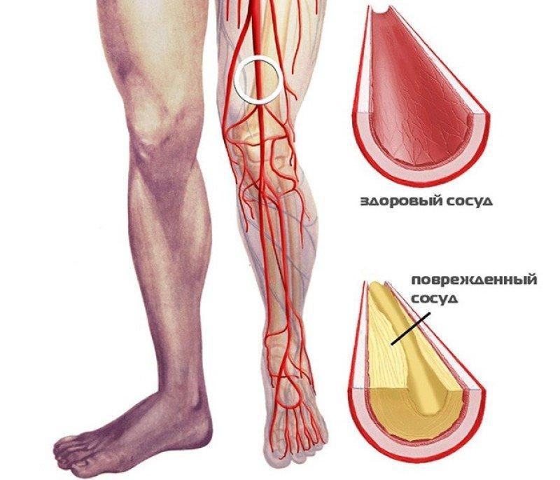 Как лечить облитерирующий эндартериит сосудов нижних конечностей (ног)