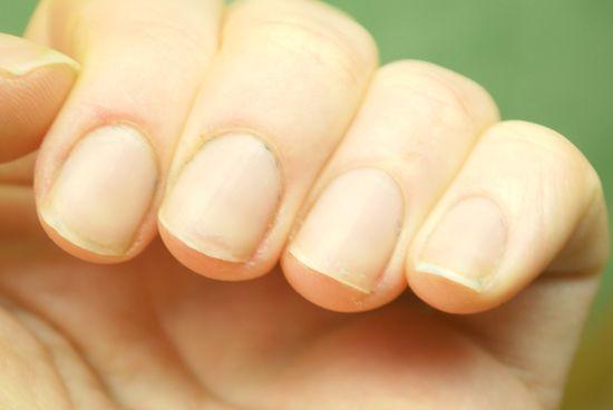 Грибок на руках: фото симптомов, начальная стадия, эффективное лечение